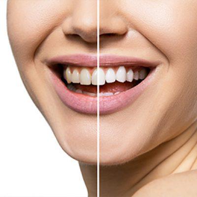 Enlighten's Evolution™ Whitening - Cosmetic Dental Gallery