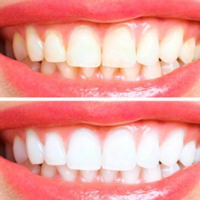 Teeth Whitening - Cosmetic Dental Gallery