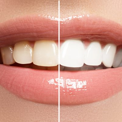 Boutique® Whitening - Cosmetic Dental Gallery