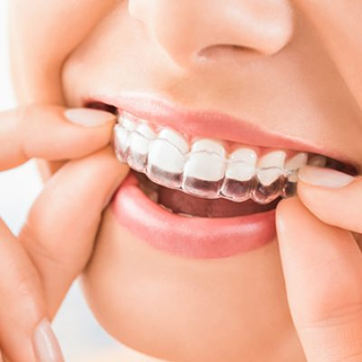 Invisalign® - Cosmetic Dental Gallery