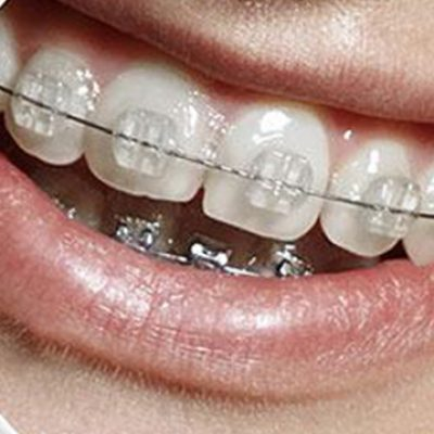 Fixed Braces - Cosmetic Dental Gallery